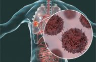 टी सेल करेंगे कैंसर का इलाज
